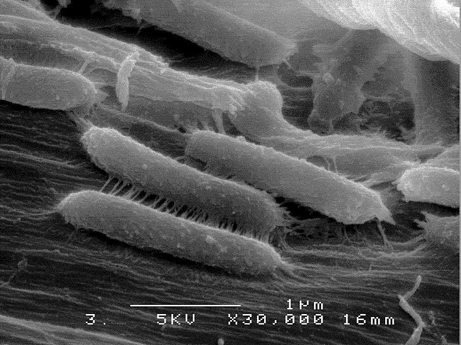 図1 酵素を使わない生物学的セルロース糖化技術により、微生物が直接セルロースを分解